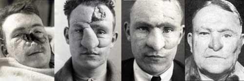 تاریخچه جراحی بینی