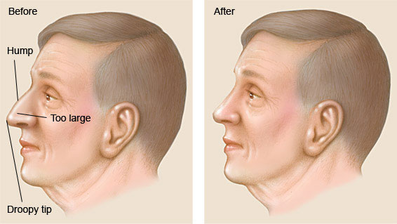 Rhinoplasty in men