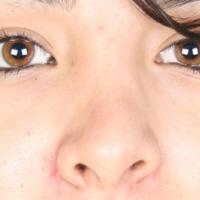 بینی کج پس از جراحی بینی
