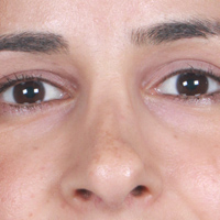 فرورفتگی پشت بینی پس از جراحی بینی