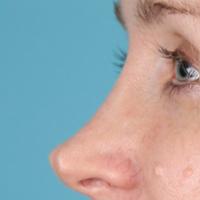 پینچ شدن یا فرورفتگی ناحیه نوک بینی