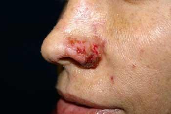 عوارض تزریق ژل به بینی