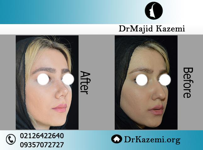 بینی استخوانی غضروفی