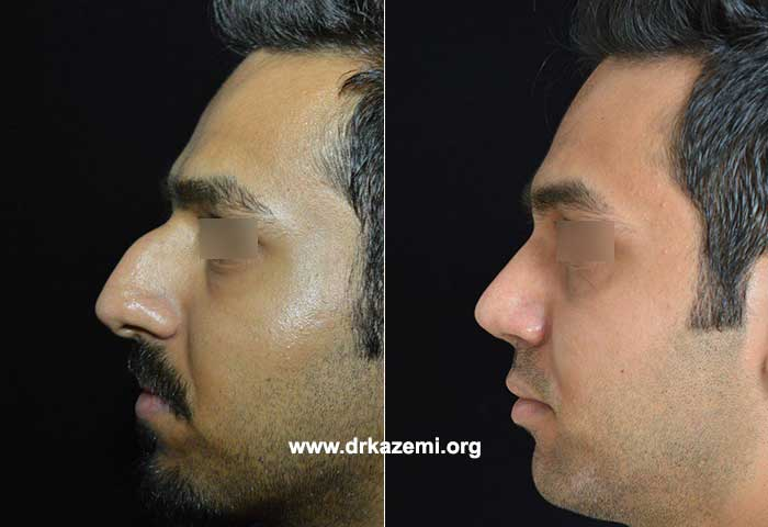 جراحی بینی طبیعی استخوانی