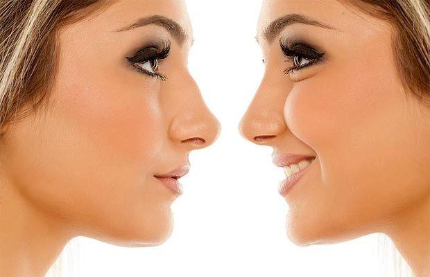 بینی استخوانی طبیعی